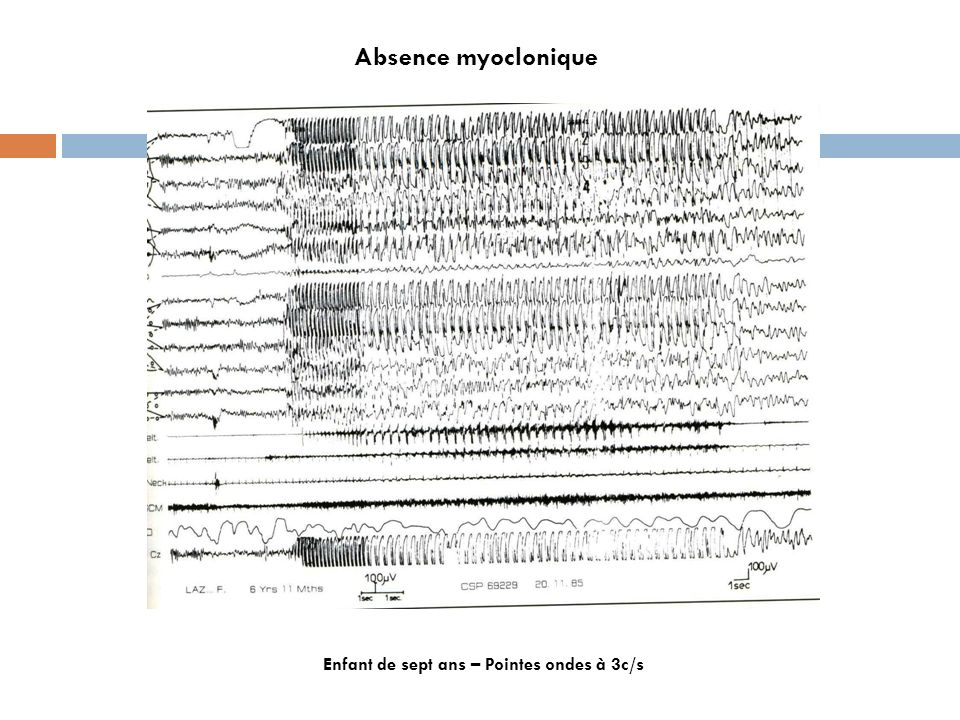 Absence myoclonique Enfant de sept ans – Pointes ondes à 3c/s