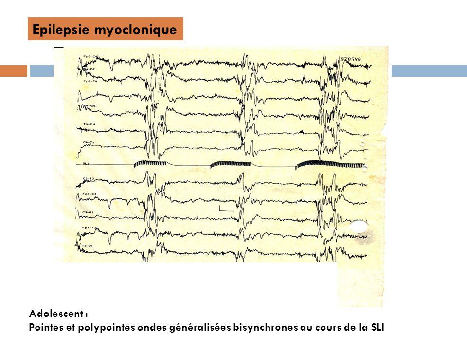Epilepsie myoclonique Adolescent : Pointes et polypointes ondes généralisées bisynchrones au cours de la SLI