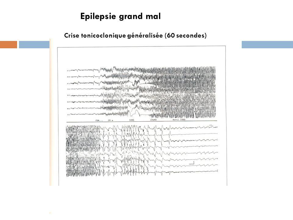 Epilepsie grand mal Crise tonicoclonique généralisée (60 secondes)