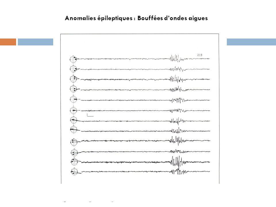 Anomalies épileptiques : Bouffées dondes aigues