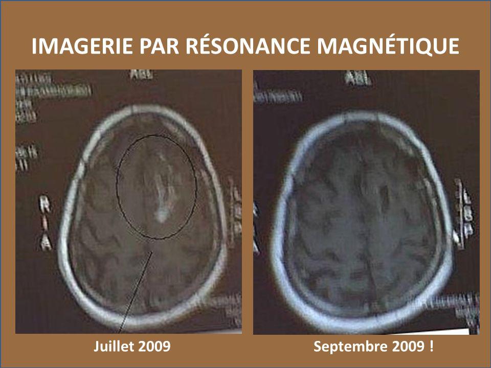 IMAGERIE PAR RÉSONANCE MAGNÉTIQUE Septembre 2009 !Juillet 2009