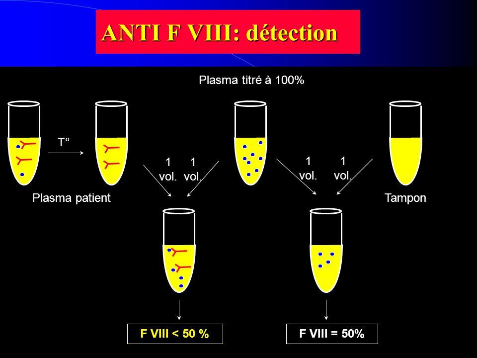 ANTI F VIII: détection T° 1 vol. Plasma patientTampon Plasma titré à 100% F VIII = 50%F VIII < 50 %