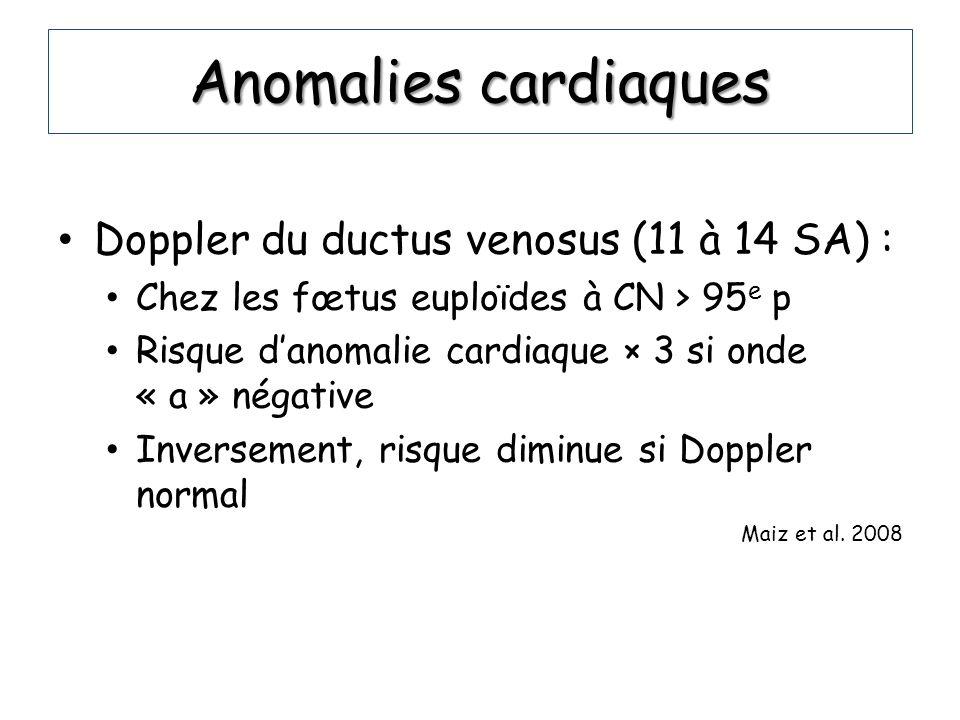Anomalies cardiaques Doppler du ductus venosus (11 à 14 SA) : Chez les fœtus euploïdes à CN > 95 e p Risque danomalie cardiaque × 3 si onde « a » néga