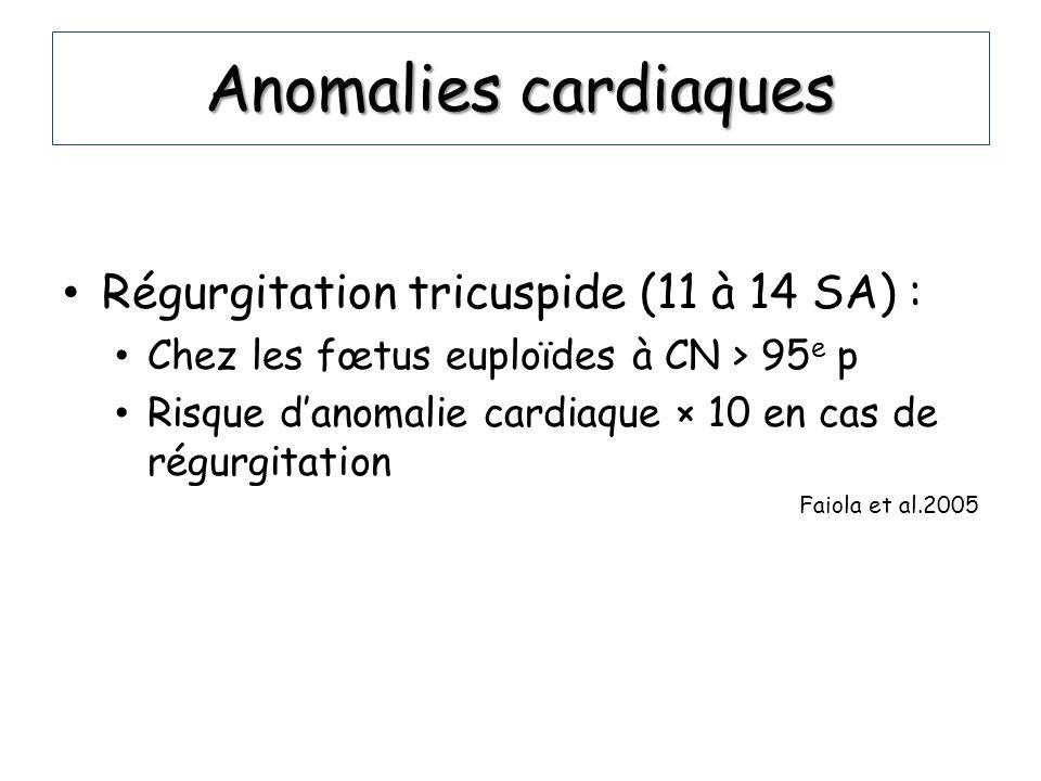 Anomalies cardiaques Régurgitation tricuspide (11 à 14 SA) : Chez les fœtus euploïdes à CN > 95 e p Risque danomalie cardiaque × 10 en cas de régurgit
