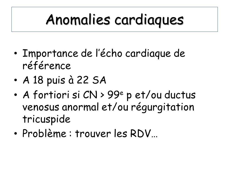 Anomalies cardiaques Importance de lécho cardiaque de référence A 18 puis à 22 SA A fortiori si CN > 99 e p et/ou ductus venosus anormal et/ou régurgi