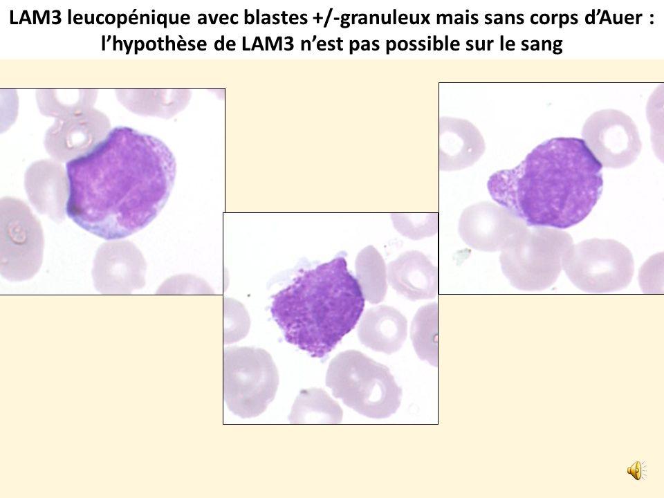 LAM3 classique: leucopénie avec quelques blastes sanguins présentant de nombreux corps dAuer (fagots)