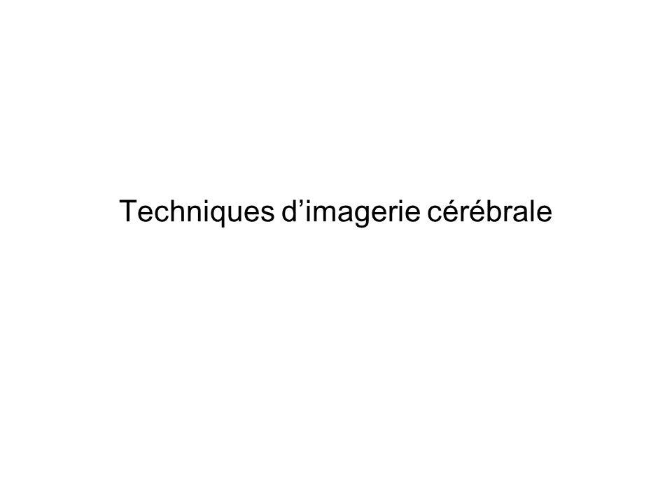 Techniques dimagerie cérébrale