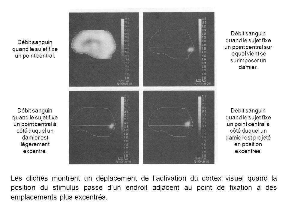 Les clichés montrent un déplacement de lactivation du cortex visuel quand la position du stimulus passe dun endroit adjacent au point de fixation à des emplacements plus excentrés.