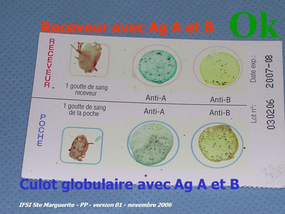 IFSI Ste Marguerite - PP - version 01 - novembre 2006 Receveur avec Ag A et B Culot globulaire avec Ag A et B Ok ISOGROUPEISOGROUPE