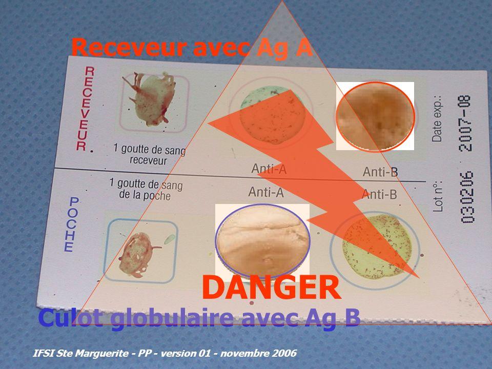 IFSI Ste Marguerite - PP - version 01 - novembre 2006 Receveur avec Ag A Culot globulaire avec Ag B DANGER