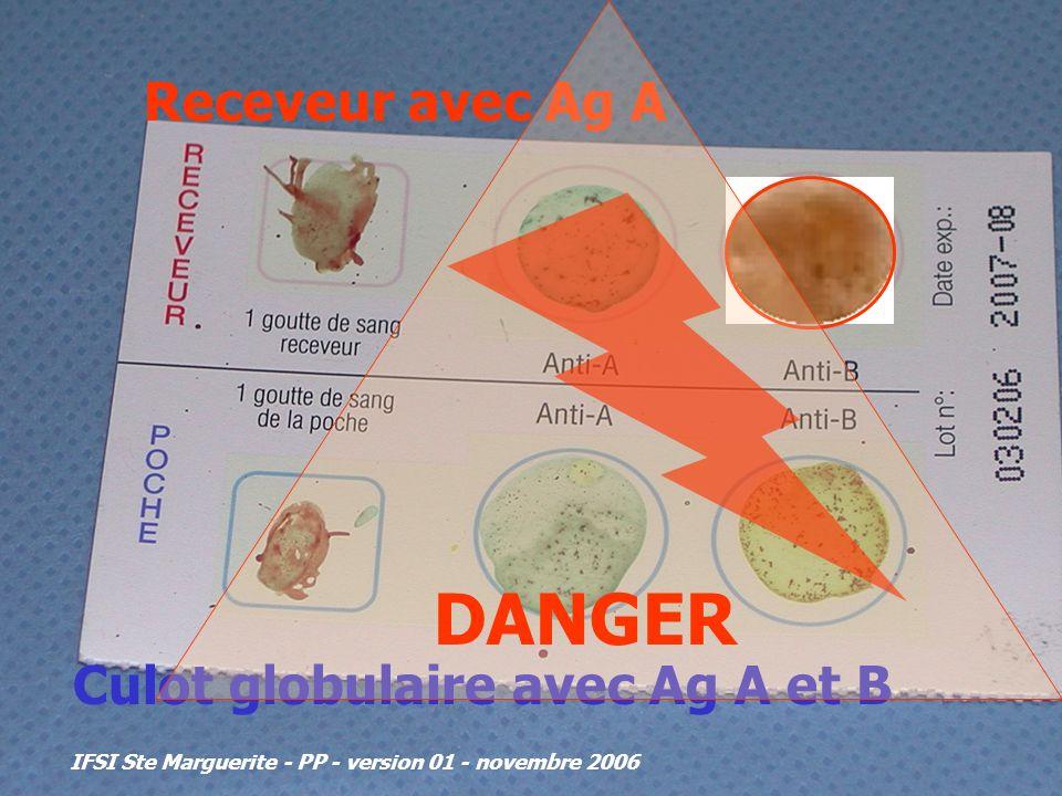 IFSI Ste Marguerite - PP - version 01 - novembre 2006 Receveur avec Ag A Culot globulaire avec Ag A et B DANGER