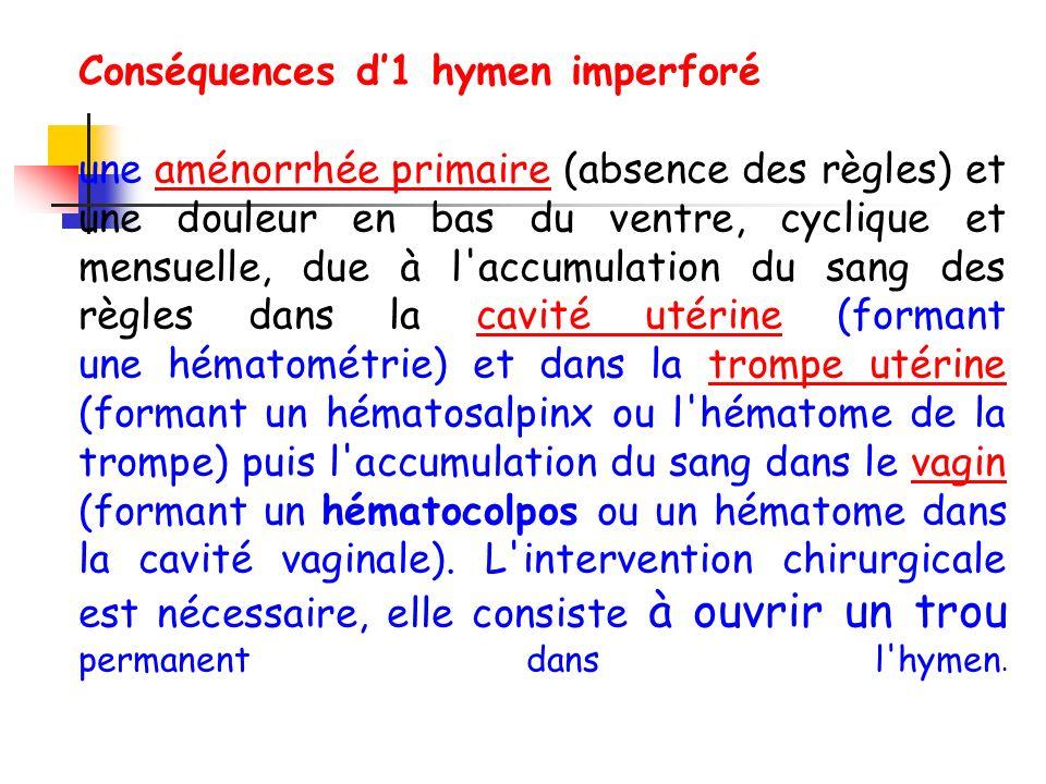 Conséquences d1 hymen imperforé une aménorrhée primaire (absence des règles) et une douleur en bas du ventre, cyclique et mensuelle, due à l accumulation du sang des règles dans la cavité utérine (formant une hématométrie) et dans la trompe utérine (formant un hématosalpinx ou l hématome de la trompe) puis l accumulation du sang dans le vagin (formant un hématocolpos ou un hématome dans la cavité vaginale).