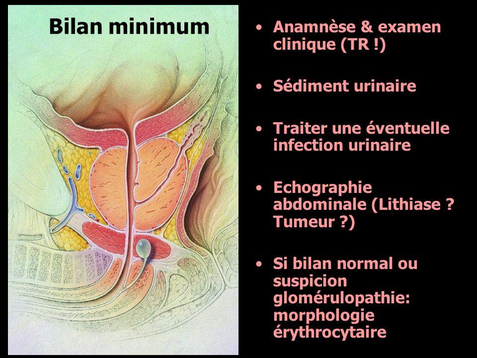 Anamnèse & examen clinique (TR !) Sédiment urinaire Traiter une éventuelle infection urinaire Echographie abdominale (Lithiase ? Tumeur ?) Si bilan no