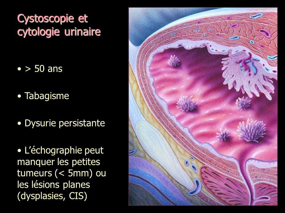 Cystoscopie et cytologie urinaire > 50 ans Tabagisme Dysurie persistante Léchographie peut manquer les petites tumeurs (< 5mm) ou les lésions planes (