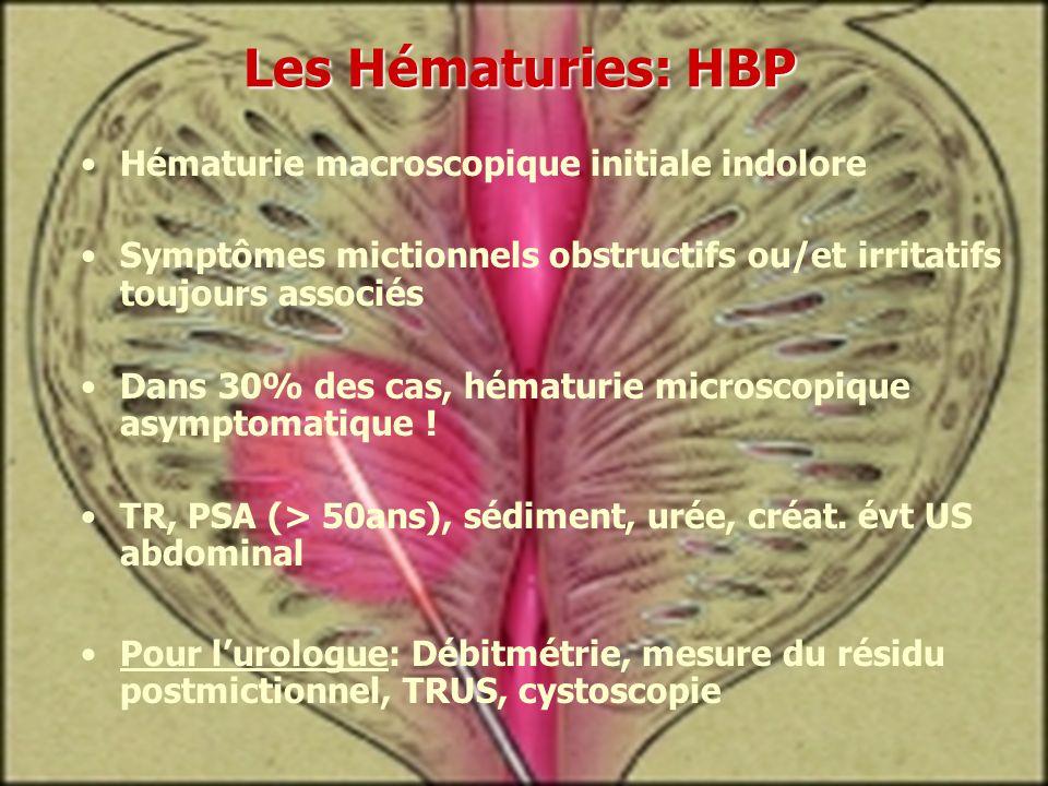 Hématurie macroscopique initiale indolore Symptômes mictionnels obstructifs ou/et irritatifs toujours associés Dans 30% des cas, hématurie microscopiq