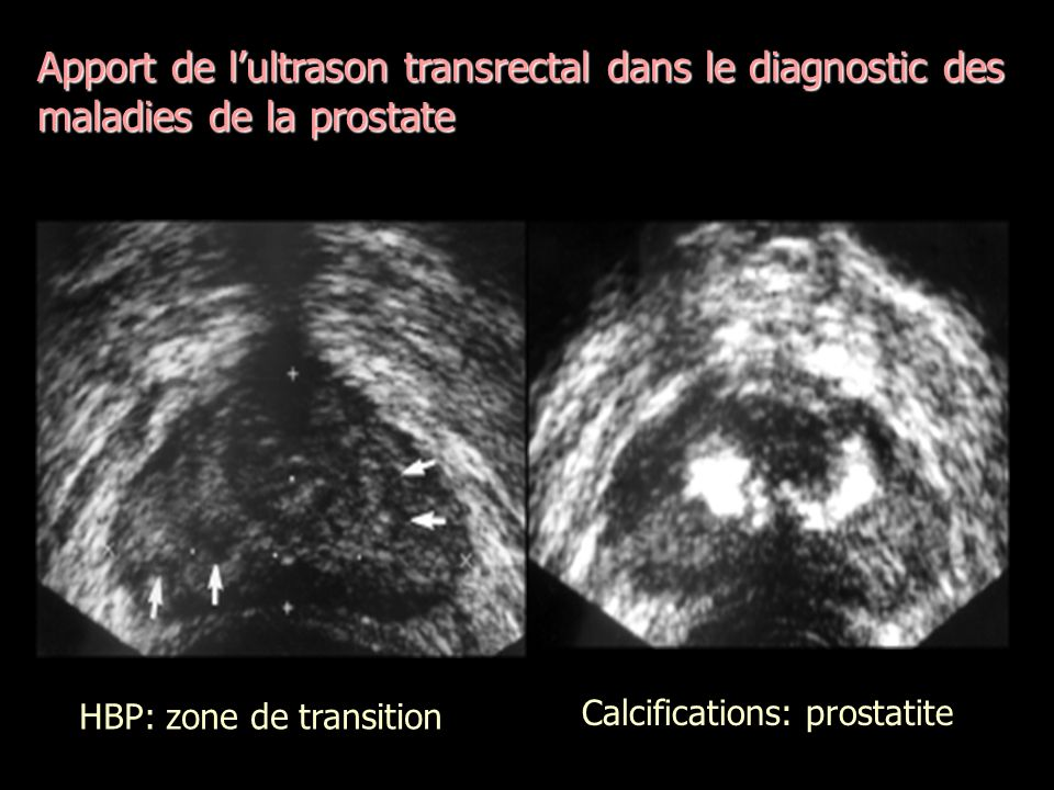 Apport de lultrason transrectal dans le diagnostic des maladies de la prostate HBP: zone de transition Calcifications: prostatite