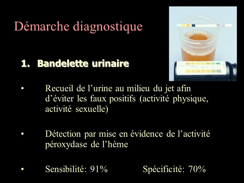 Démarche diagnostique 1.Bandelette urinaire Recueil de lurine au milieu du jet afin déviter les faux positifs (activité physique, activité sexuelle) D