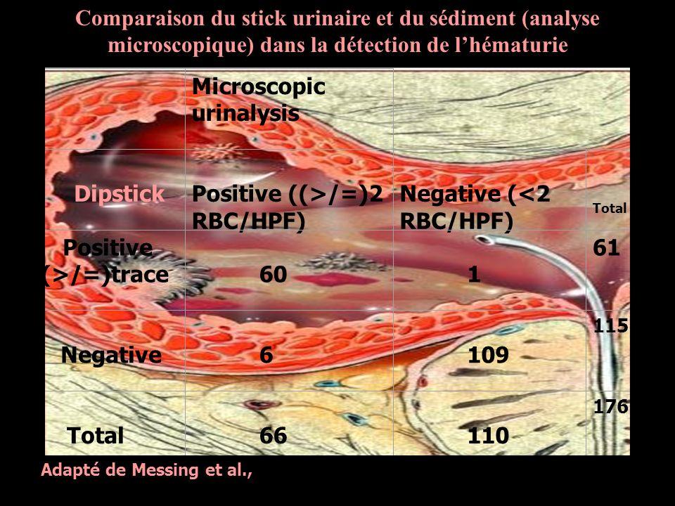 2.Sédiment urinaire Infection urinaire .