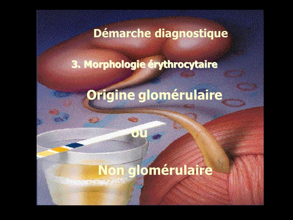3. Morphologie érythrocytaire Origine glomérulaire ou Non glomérulaire Démarche diagnostique