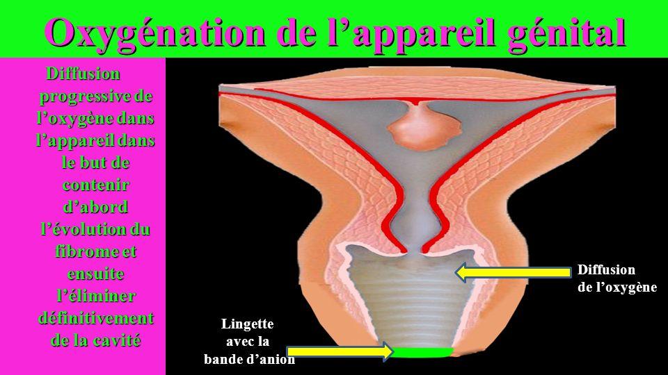 Oxygénation de lappareil génital Diffusion progressive de loxygène dans lappareil dans le but de contenir dabord lévolution du fibrome et ensuite léli