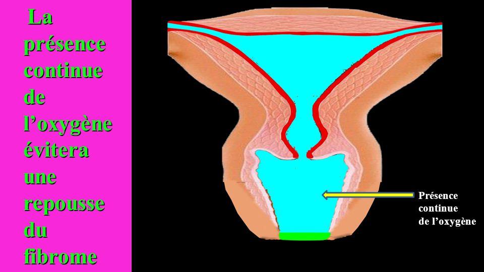 La présence continue de loxygène évitera une repousse du fibrome La présence continue de loxygène évitera une repousse du fibrome Présence continue de loxygène