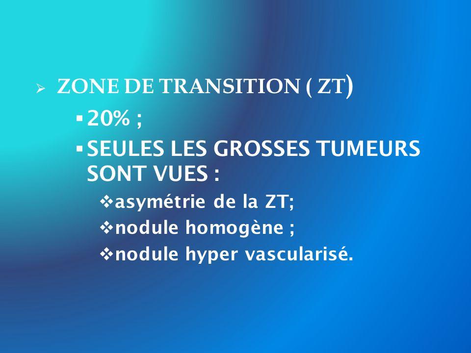 ZONE DE TRANSITION ( ZT ) 20% ; SEULES LES GROSSES TUMEURS SONT VUES : asymétrie de la ZT; nodule homogène ; nodule hyper vascularisé.