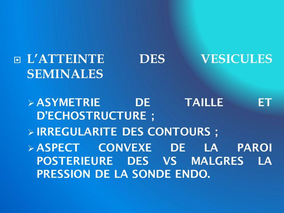 LATTEINTE DES VESICULES SEMINALES ASYMETRIE DE TAILLE ET DECHOSTRUCTURE ; IRREGULARITE DES CONTOURS ; ASPECT CONVEXE DE LA PAROI POSTERIEURE DES VS MA