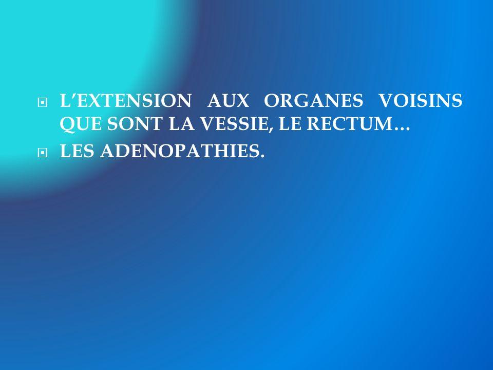 LEXTENSION AUX ORGANES VOISINS QUE SONT LA VESSIE, LE RECTUM… LES ADENOPATHIES.