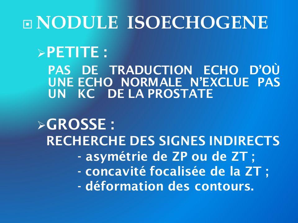 NODULE ISOECHOGENE PETITE : PAS DE TRADUCTION ECHO DOÙ UNE ECHO NORMALE NEXCLUE PAS UN KC DE LA PROSTATE GROSSE : RECHERCHE DES SIGNES INDIRECTS - asy