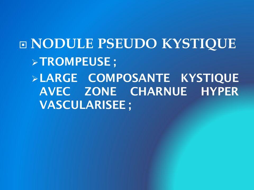 NODULE PSEUDO KYSTIQUE TROMPEUSE ; LARGE COMPOSANTE KYSTIQUE AVEC ZONE CHARNUE HYPER VASCULARISEE ;