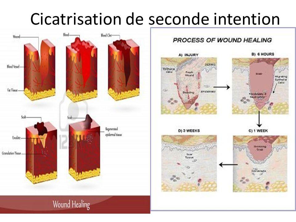 La Peau Mécanisme cellulaire très complexe 6 phases : – Réponse vasculaire – Hémostase – Inflammation – Prolifération cellulaire – Épidermisation – Co