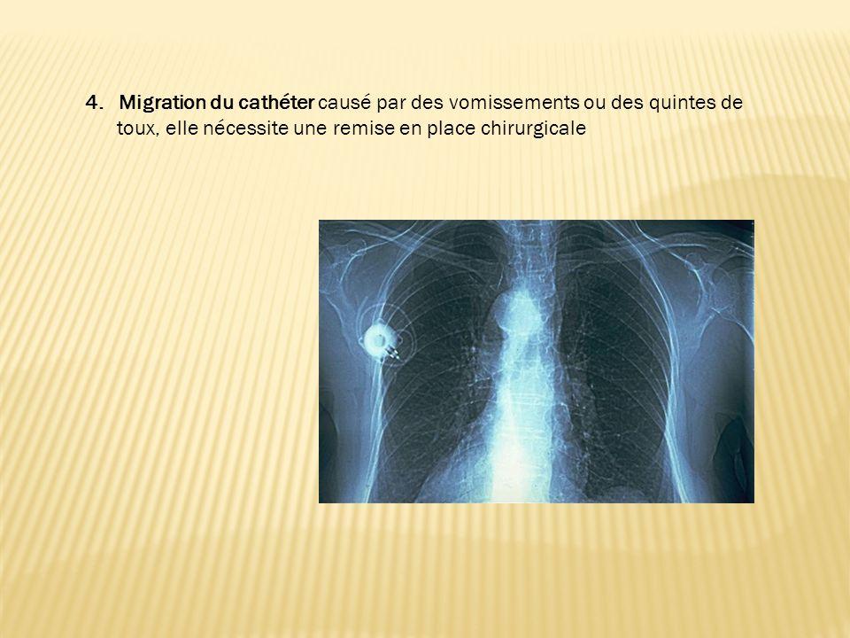 4. Migration du cathéter causé par des vomissements ou des quintes de toux, elle nécessite une remise en place chirurgicale