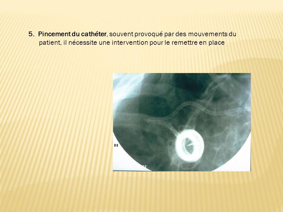 5. Pincement du cathéter, souvent provoqué par des mouvements du patient, il nécessite une intervention pour le remettre en place