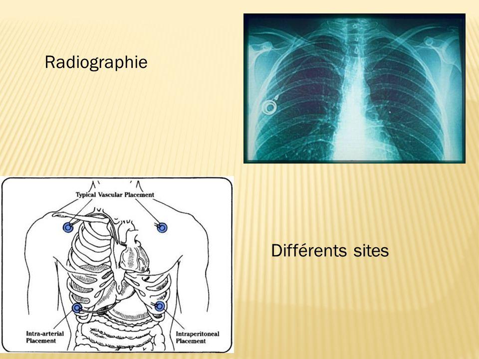 Radiographie Différents sites