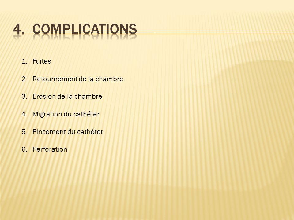 1.Fuites 2.Retournement de la chambre 3.Erosion de la chambre 4.Migration du cathéter 5.Pincement du cathéter 6.Perforation
