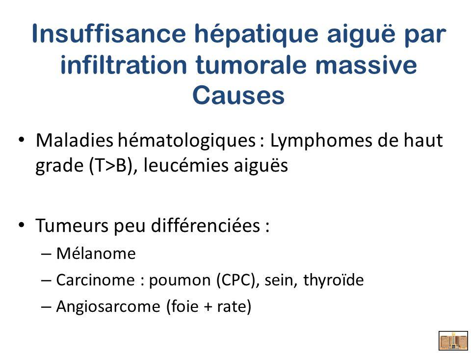 Insuffisance hépatique aiguë par infiltration tumorale massive Causes Maladies hématologiques : Lymphomes de haut grade (T>B), leucémies aiguës Tumeurs peu différenciées : – Mélanome – Carcinome : poumon (CPC), sein, thyroïde – Angiosarcome (foie + rate)