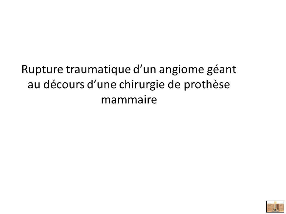 Rupture traumatique dun angiome géant au décours dune chirurgie de prothèse mammaire