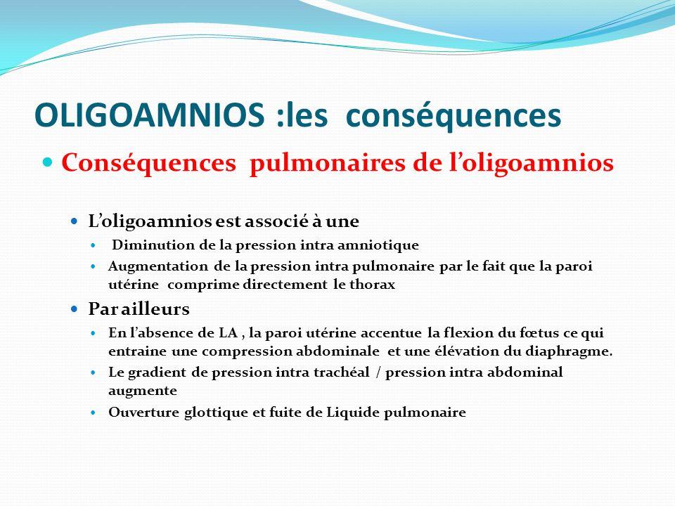 Conséquences pulmonaires de loligoamnios Loligoamnios est associé à une Diminution de la pression intra amniotique Augmentation de la pression intra p