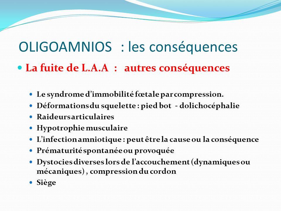 OLIGOAMNIOS : les conséquences La fuite de L.A.A : autres conséquences Le syndrome dimmobilité fœtale par compression. Déformations du squelette : pie
