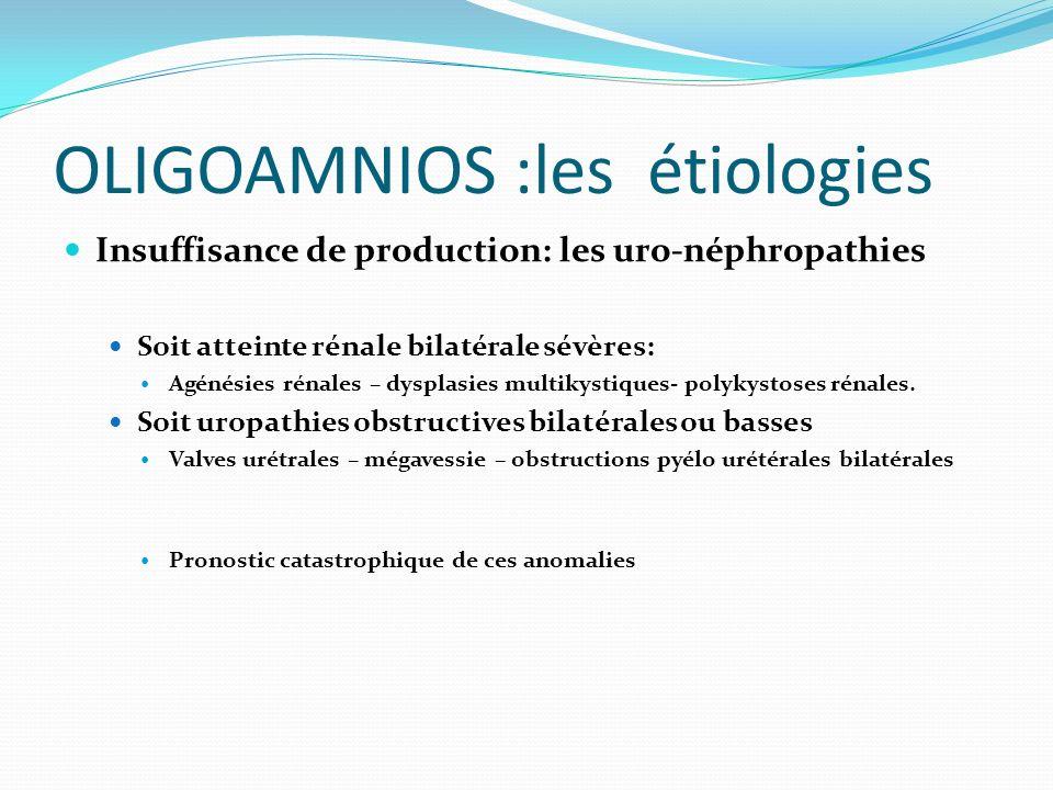 OLIGOAMNIOS :les étiologies Insuffisance de production: les uro-néphropathies Soit atteinte rénale bilatérale sévères: Agénésies rénales – dysplasies