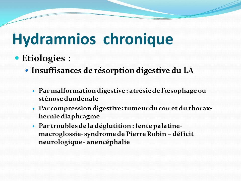Hydramnios chronique Etiologies : Insuffisances de résorption digestive du LA Par malformation digestive : atrésie de lœsophage ou sténose duodénale P