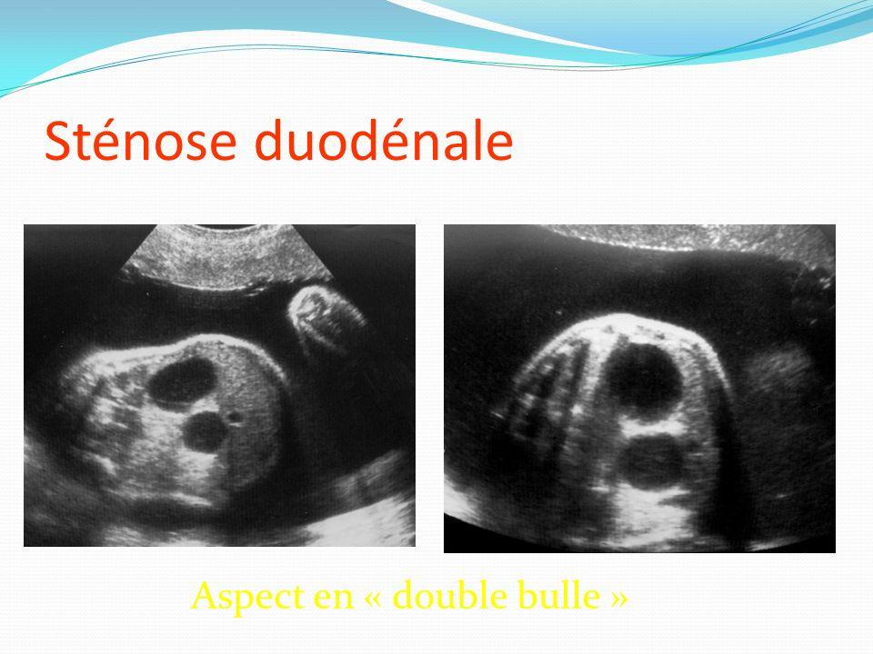 Sténose duodénale Aspect en « double bulle »