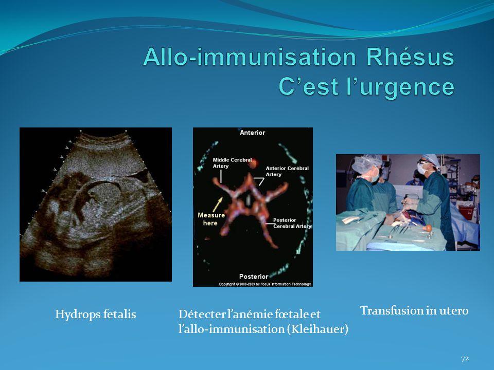 72 Hydrops fetalisDétecter lanémie fœtale et lallo-immunisation (Kleihauer) Transfusion in utero