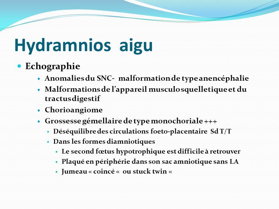 Hydramnios aigu Echographie Anomalies du SNC- malformation de type anencéphalie Malformations de lappareil musculo squelletique et du tractus digestif