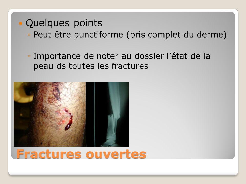 Fractures ouvertes Quelques points Peut être punctiforme (bris complet du derme) Importance de noter au dossier létat de la peau ds toutes les fractur