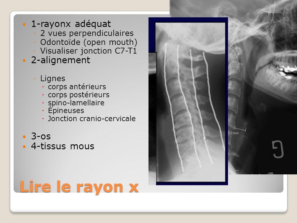 Lire le rayon x 1-rayonx adéquat 2 vues perpendiculaires Odontoïde (open mouth) Visualiser jonction C7-T1 2-alignement Lignes corps antérieurs corps p