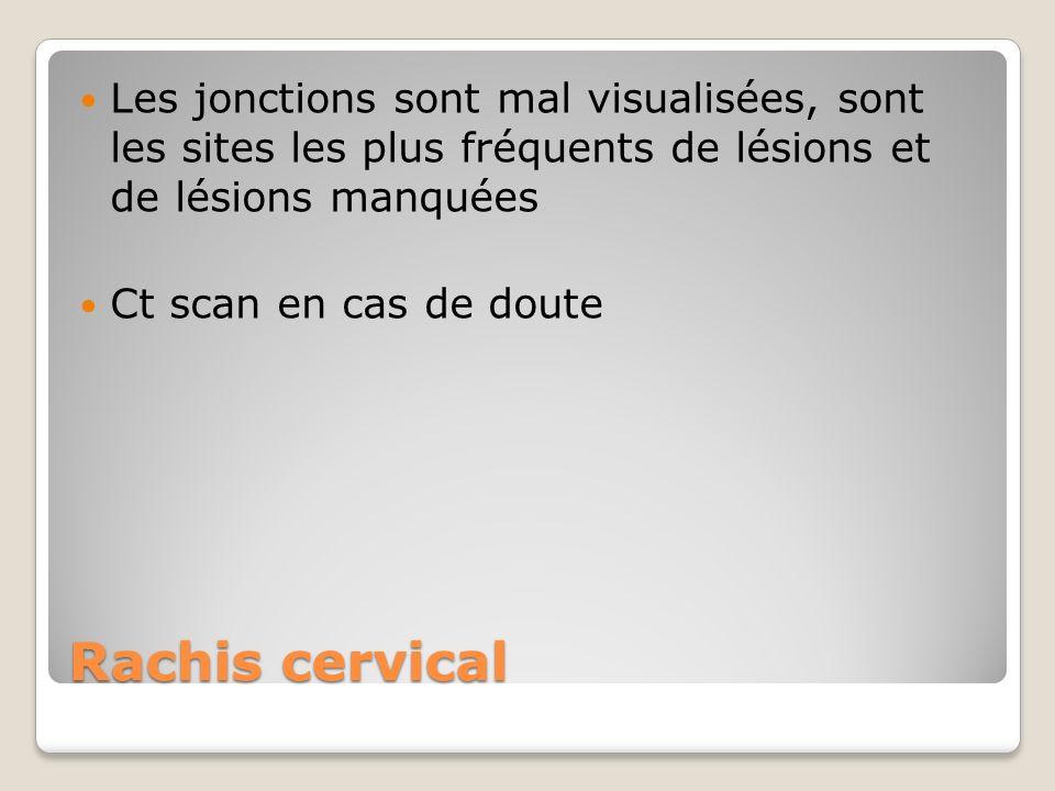 Rachis cervical Les jonctions sont mal visualisées, sont les sites les plus fréquents de lésions et de lésions manquées Ct scan en cas de doute