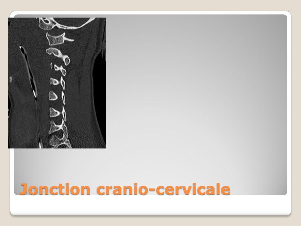 Jonction cranio-cervicale