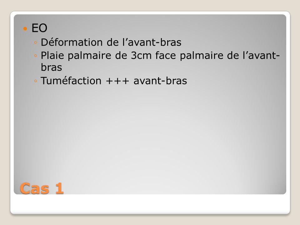 Cas 1 EO Déformation de lavant-bras Plaie palmaire de 3cm face palmaire de lavant- bras Tuméfaction +++ avant-bras