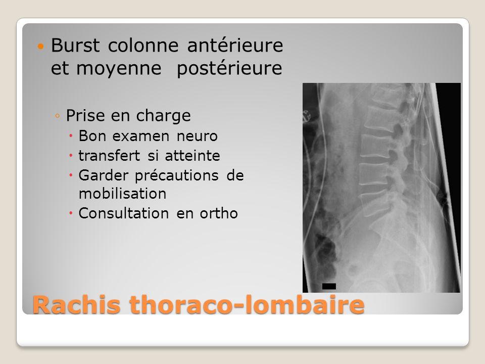 Rachis thoraco-lombaire Burst colonne antérieure et moyenne postérieure Prise en charge Bon examen neuro transfert si atteinte Garder précautions de m